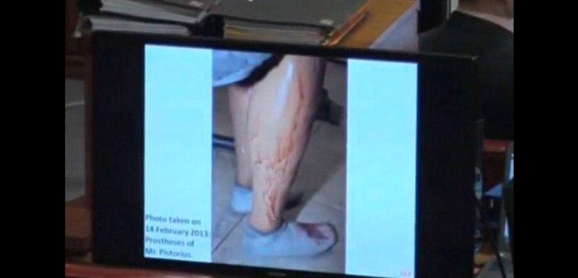 Oscar Pistorius proteser
